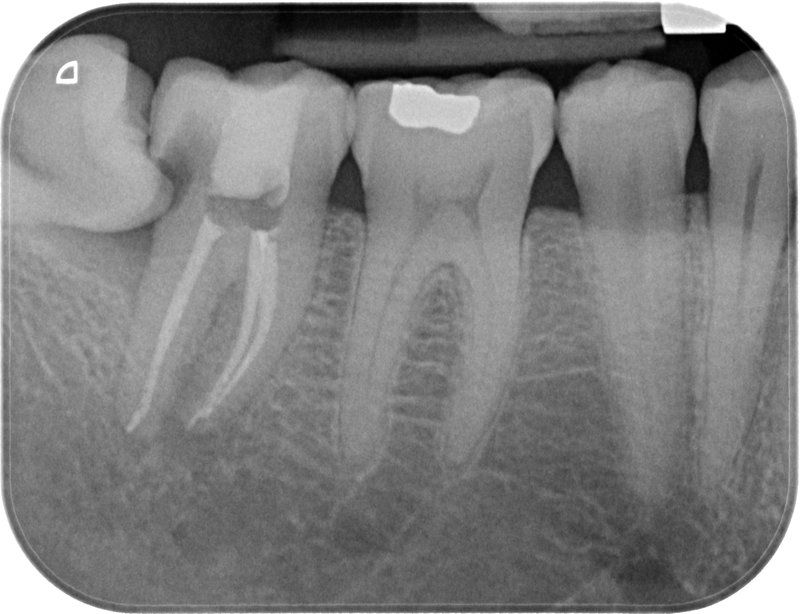Endodoncia caso 2 Resultado Final
