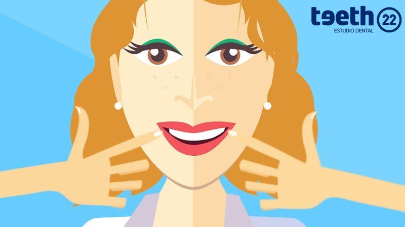 ¿ Cuanto dura un blanqueamiento dental ?