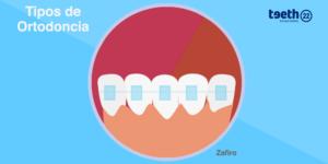 Ortodoncia con brackets estéticos