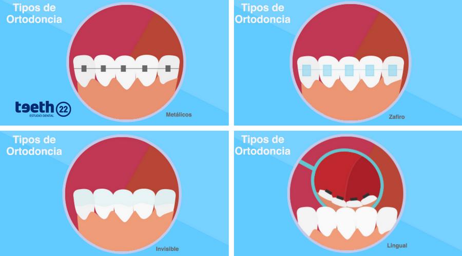 Tipos de Ortodoncia, ventajas e incovenientes