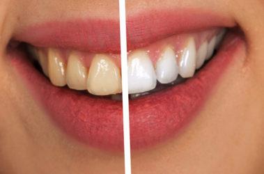 Cómo cuidar los dientes después de un blanqueamiento dental