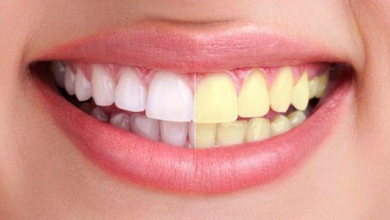 Resultados blanqueamiento dental