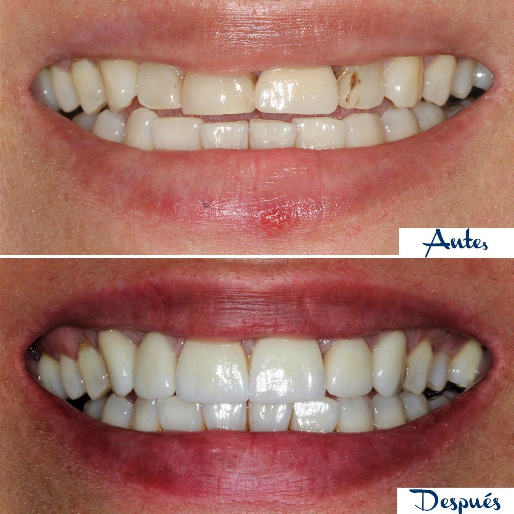 Antes y después de un tratamiento de estética dental