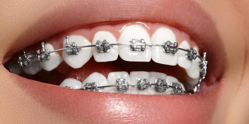 Cómo cuidar los dientes durante un tratamiento de ortodoncia   Teeth 22