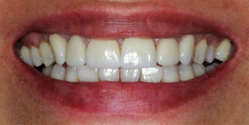 Hoy os traemos el antes y el después de un tratamiento de estética dental que combina carillas, coronas sobre implantes y un blanqueamiento dental.