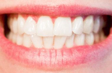 Caries dental: qué es y cómo prevenirla